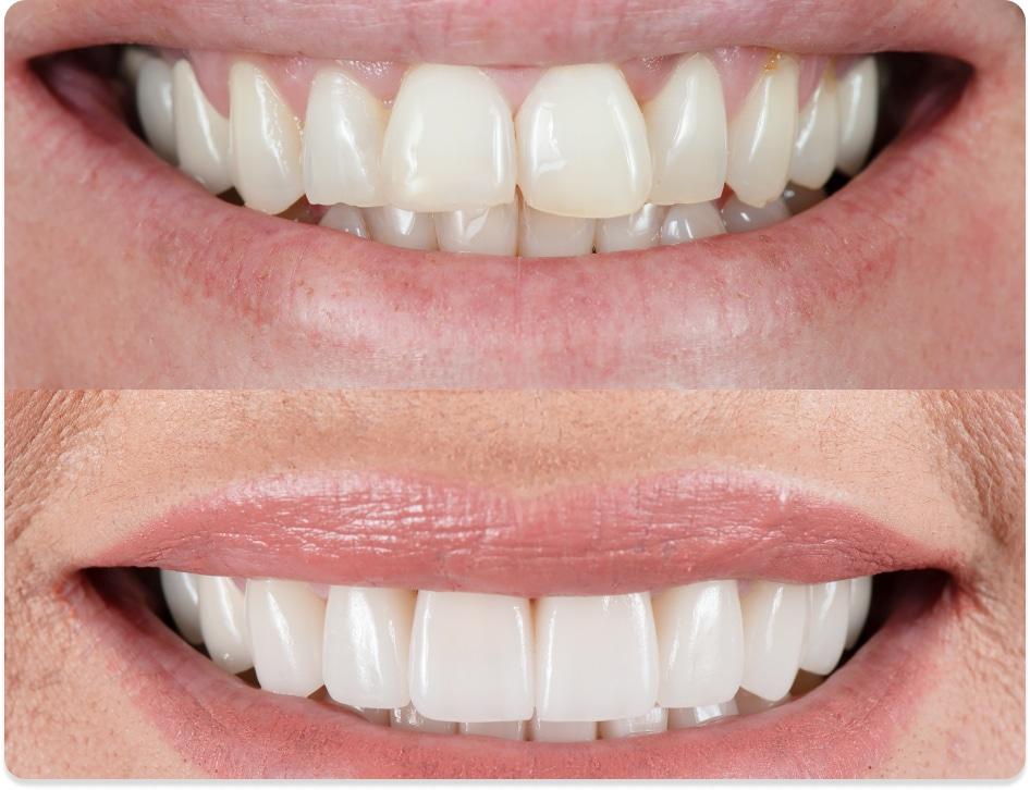 dental veneers cost