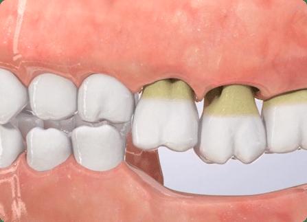 full dental implants cost